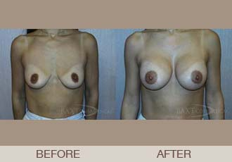 Breast Augmentation Before and After | Paramus, NJ