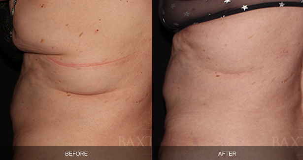 CoolSculpting® Before & After Photos Bergen County