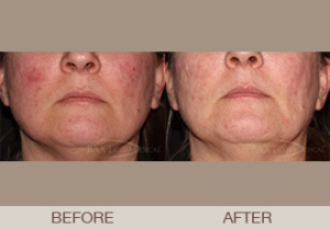Rosacea Treatment Gallery