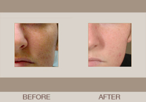Isolaz® Acne Treatment Gallery
