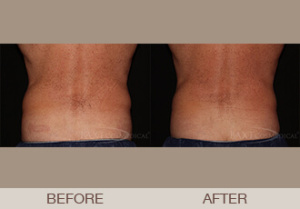 CoolSculpting® Gallery