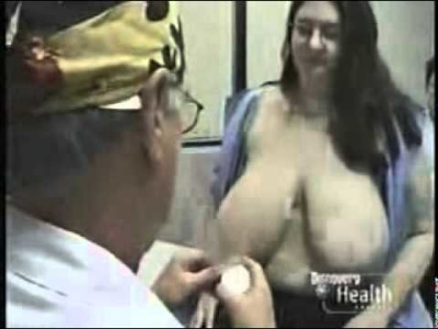 Scarless Breast Reduction
