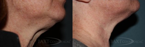 Click Here to View More Kybella® Before & After Photos