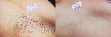 Click Here to View More Laser Hair Removal Before & After Photos
